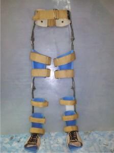 HKAFO (Hip Knee Ankle Foot Orhosis) Brace